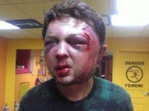 """""""Neznámí muži"""" názorně vysvětlili Viktoru Svjatskému, že """"Ukrajina není bordel"""""""